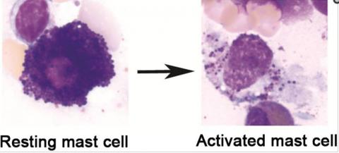 MCAD: What an activated mast cell looks like