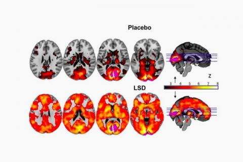 A scientific study to capture images of your brain on LSD