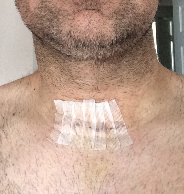 recovering from a total thyroidectomy papillary thyroid cancer